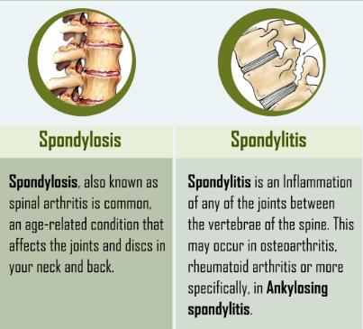 Cervical Spondylosis Vs Cervical Spondylitis