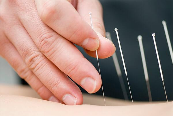Acupuncture- Insertion of needles into specific points on the skin.