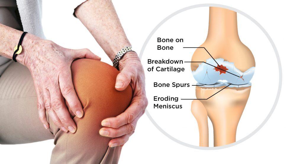 Effects of Osteoarthritis