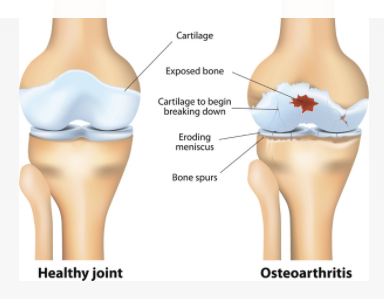 Healthy joint vs Osteoarthritis - Inflammation and joint pain due to excess weight